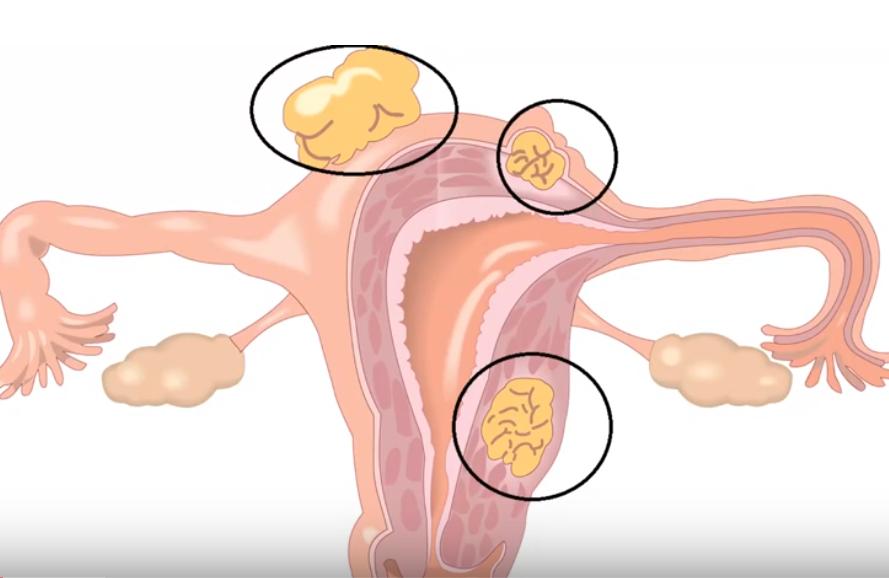 Fibromul în sarcină